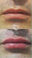 Aumento de labios - Luz Maria Cañavera