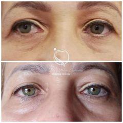 Eliminación de ojeras - Luz Maria Cañavera