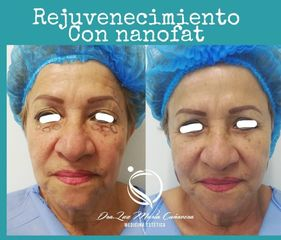 Rejuvenecimiento facial - Luz Maria Cañavera