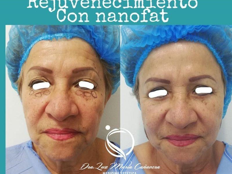 Dra. Luz María Cañavera