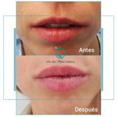 Luz Maria Cañavera - aumento de labios