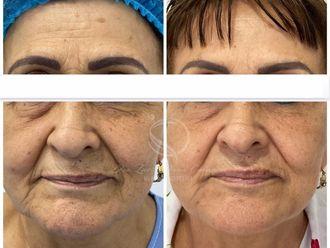 Rejuvenecimiento facial - 795013