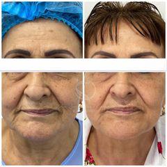 Rejuvenecimiento facial - Dra. Luz Maria Cañavera