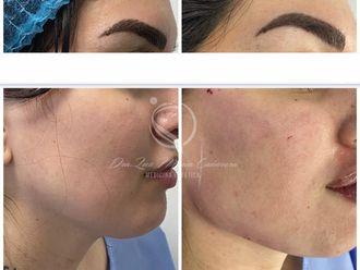Rejuvenecimiento facial - 795015