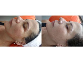 Rejuvenecimiento facial-663664
