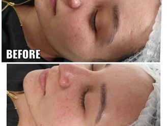 Rejuvenecimiento facial-775557