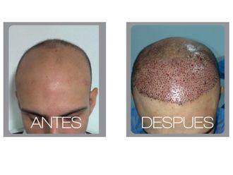 Implantes de cabello-511207