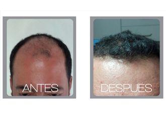 Implantes de cabello - 511214