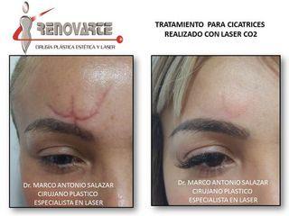 tratamiento laser para cicatriz