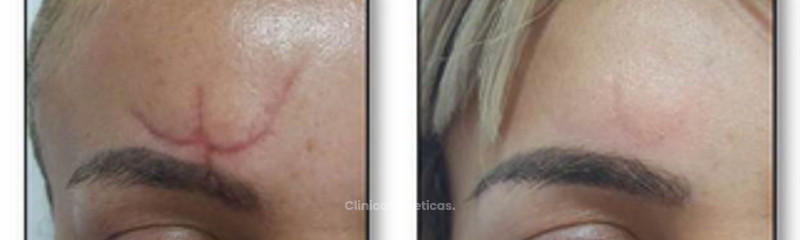 tratamiento laser para cicatriz.jpg