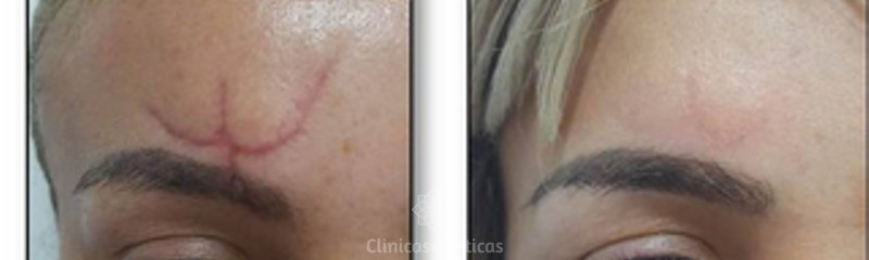 Antes y despues de Tratamiento con Laser de CO2 para cicatrices