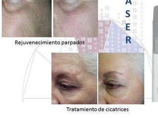 Antes y despues de tratamiento de rejuvenecimiento