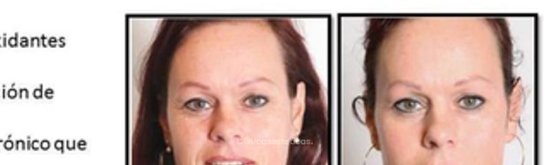 Antes y despues de meta-terapia