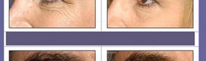 Antes y despues de cirugia de parpados