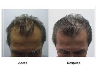 Alopecia-509982