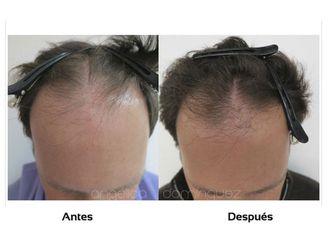 Alopecia-509983