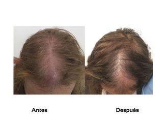 Alopecia-509984