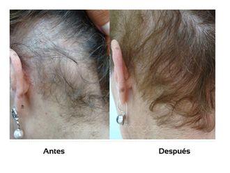 Alopecia-509985