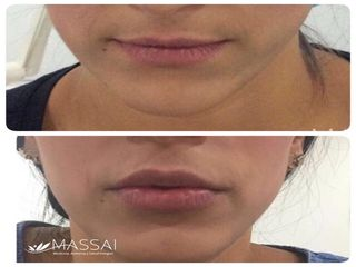 Labios - Volumen Natural y armónico