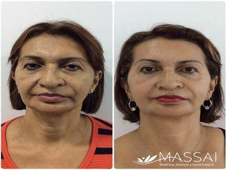 Rejuvenecimiento facial-638622
