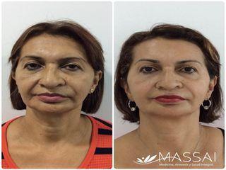 Rejuvenecimiento facial 5D con láser