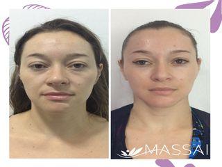 Tratamiento Rejuvenecimiento Facial y Porcelanización