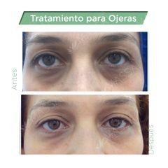 Corrección de Ojeras  con Acido Hialurónico