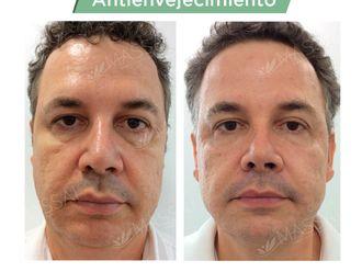 Rejuvenecimiento facial - 737546