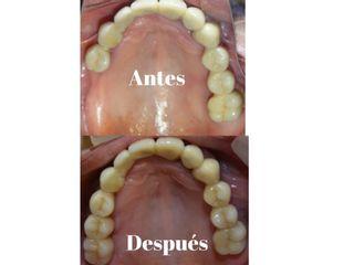 Implantes dentales para reemplazo de dientes perdidos