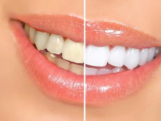 Antes y despues de blanquemiento dental