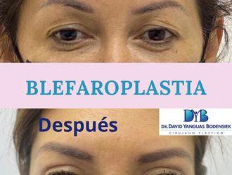 Blefaroplastia-790067