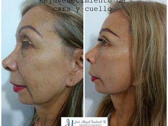 Rejuvenecimiento facial - 643882