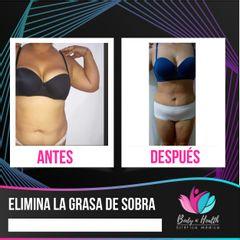 Body N´Health - Liposucción