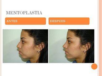 Mentoplastia-524475