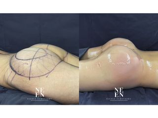 Gluteoplastia - Dra. Nicole Echeverry