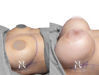 Mamoplastia de aumento-739352