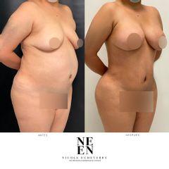 Liposucción - Dra. Nicole Echeverry