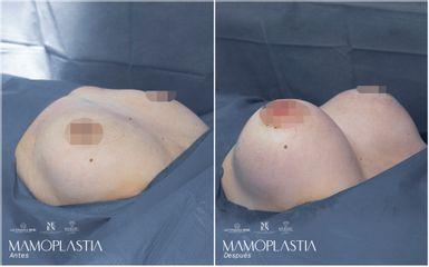 Mamoplastia de aumento - Dra. Nicole Echeverry