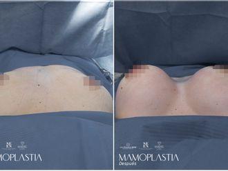 Mamoplastia de aumento-793393