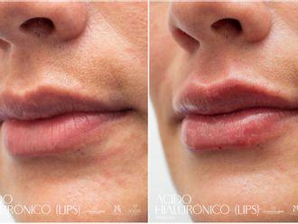 Aumento de labios-793394