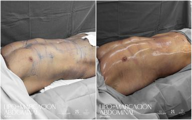 Lipomarcación Abdominal - Dra. Nicole Echeverry