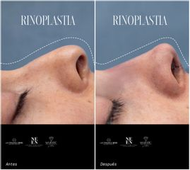 Rinoplastia - Dra. Nicole Echeverry