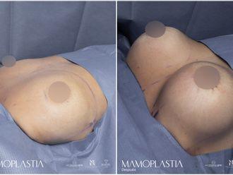 Mamoplastia de aumento-793977