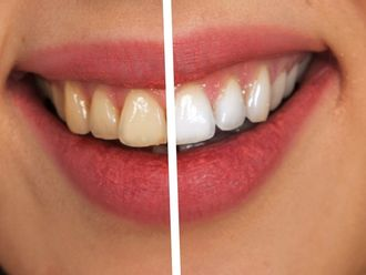 Blanqueamiento dental - 617923