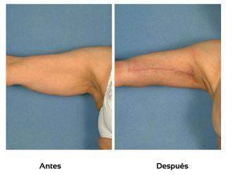 Liposucción-509966