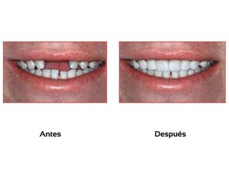 Implantes dentales - 511245