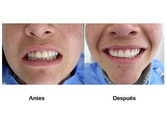 Ortodoncia-511247