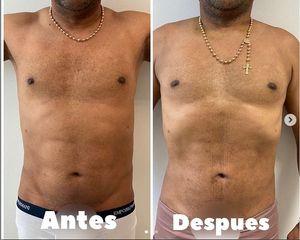 Liposucción - Dr. Hugo Javier Mejía Cuello