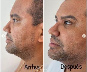 Liposucción de papada - Dr. Hugo Javier Mejía Cuello