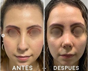 Rinoplastia - Dr. Hugo Javier Mejía Cuello